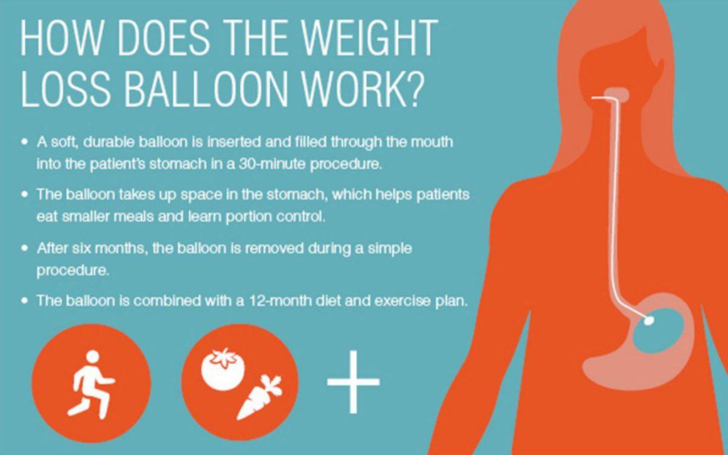 gastric-ballloon-1