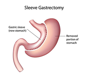 gastric-sleeve-structure