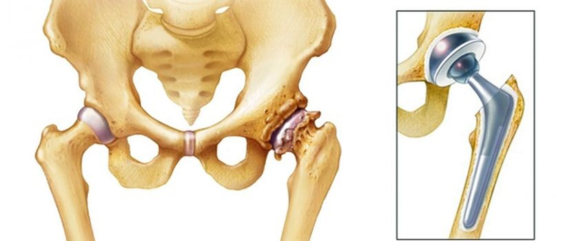 hip-replacement-2