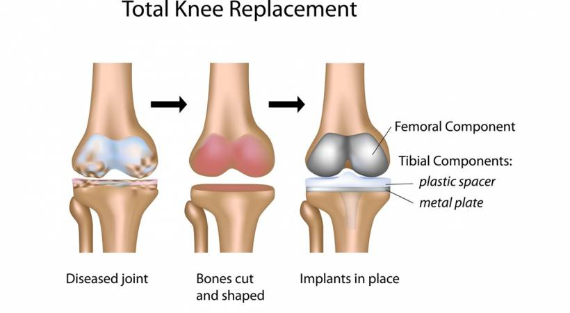 procedure of a knee replacement surgery