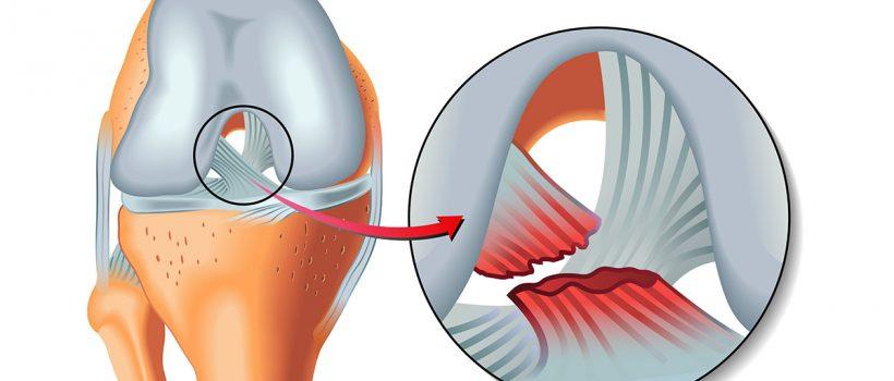 ligament-injury1