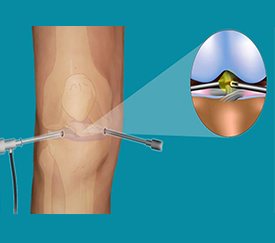 ARTHROSCOPY Thane