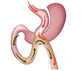 mini-gastric-band