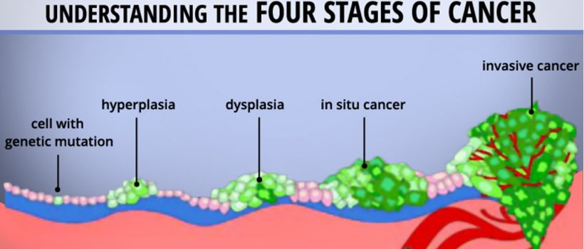 cancer and their stages
