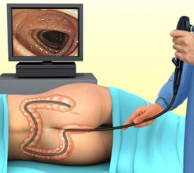 Virtual Colonoscopy Thane