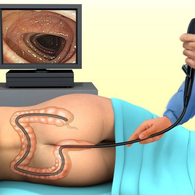 colonoscopy-1-min