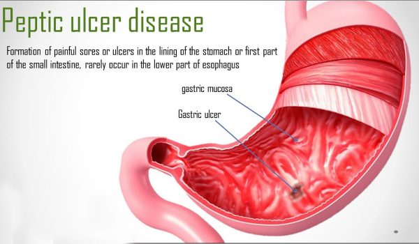 Ulcers Symptoms Mumbai