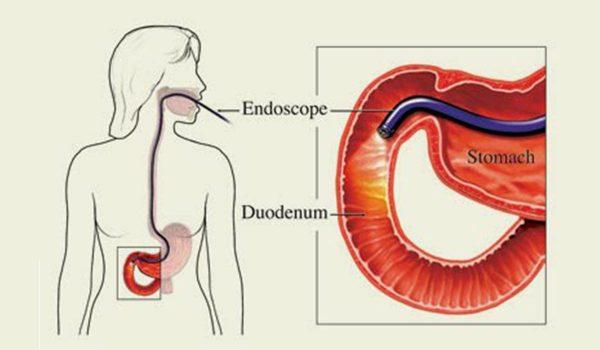 Upper Endoscopy India