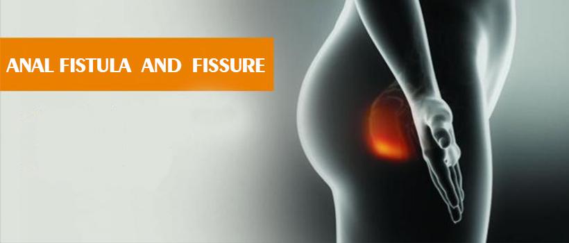 anal fistula and fissure