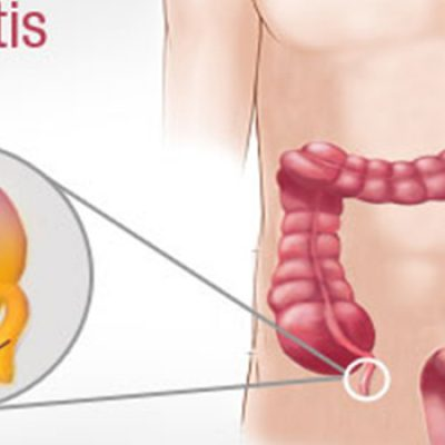 laparoscopic appendectomy treatment thane india