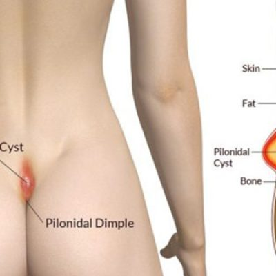 1st-pilonidal-sinus