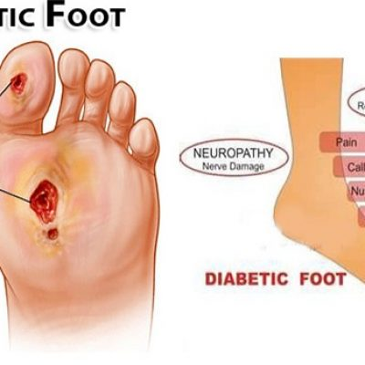 diabetic foot treatment