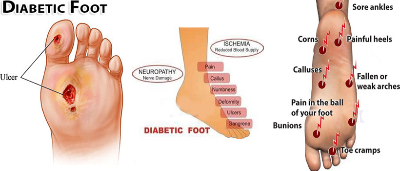 1st-the-diabetic-foot
