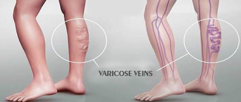 varicose veins treatment mumbai india