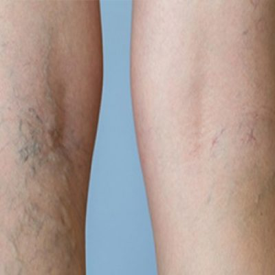 causes of varicose veins thane