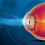 Glaucoma Disease+f Types, Causes and Symptoms
