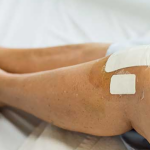 Benefits of Partial Knee Replacement Surgery