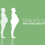 stages of obesity and treatment