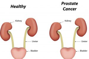 Prostate Cancer | currae hospitals